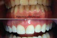 دکتر حسین برجیان بروجنی – دندانپزشک – ایمپلنت
