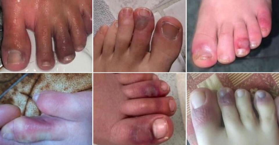 آن چه باید درباره انگشتان کوویدی بدانید